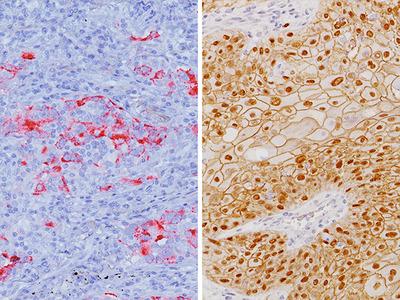 Desmoglein 3 + p40 + Napsin A Antibody