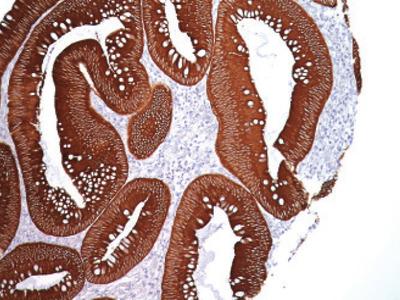 Pan Cytokeratin [AE1/AE3] Antibody