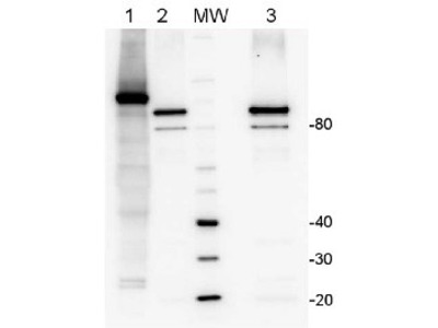 Anti- LOX ; lipoxygenase (Affinity purified)