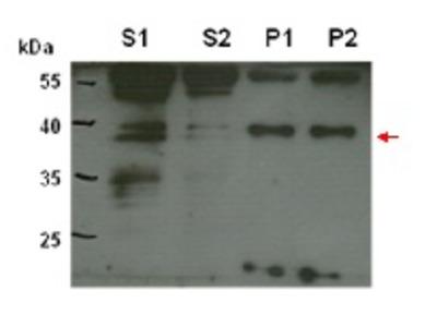 Anti- CPT6 ; cis-prenyltransferase 6