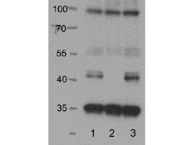 Anti- SnRK2.2, SnRK2.3, SnRK2.6 ; Ser/Thr-protein kinase SnRK