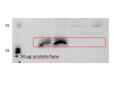 Anti- VPS29 ; Vacuolar protein sorting 29