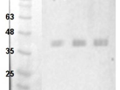 Anti- GOX ; Glycolate oxidase 1,2,3