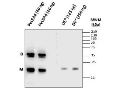 Anti- LEA4-25 ; Group 4-late embryogenesis abundant protein