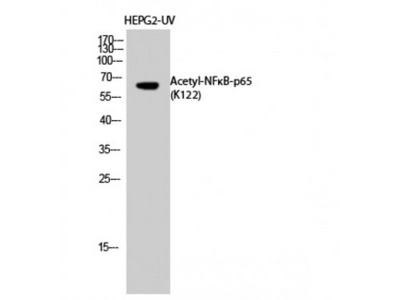 RELA / NFKB p65 Antibody