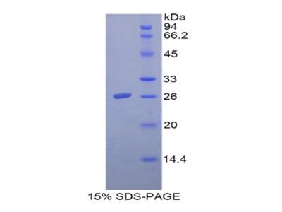 FOLR1 / Folate Receptor Alpha Protein