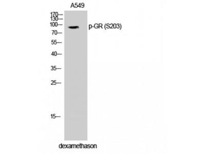 NR3C1/Glucocorticoid Receptor Antibody