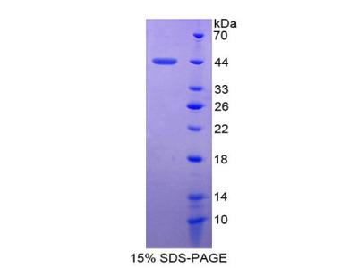 SAA4 Protein
