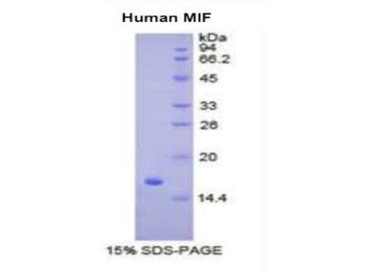 MIF Protein