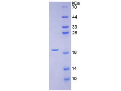 CGRP / Calcitonin Gene-Related Peptide Protein