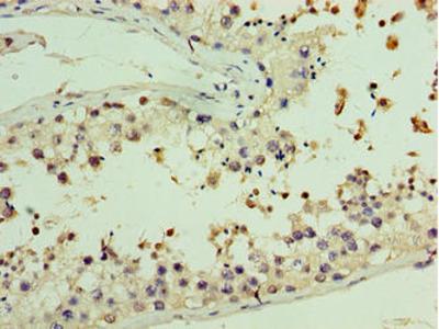 AASDHPPT / LYS5 Antibody