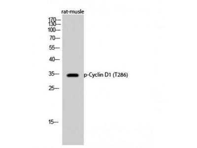 CCND1 / Cyclin D1 Antibody