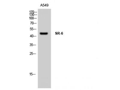 HTR6 / 5-HT6 Receptor Polyclonal Antibody