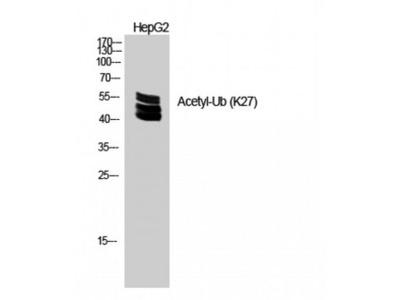Ubiquitin Polyclonal Antibody