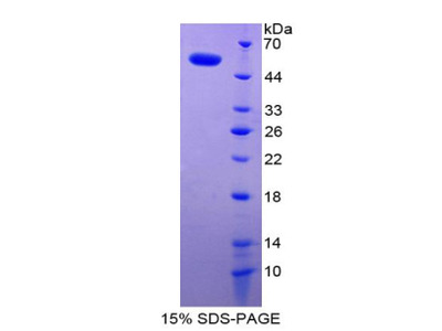 SDC1 / Syndecan 1 / CD138 Protein