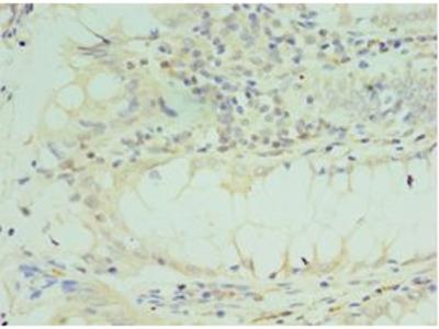 TICAM2 / TRAM Antibody
