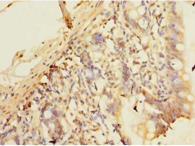 PLEKHS1 / C10orf81 Polyclonal Antibody
