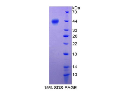 S100A2 Protein