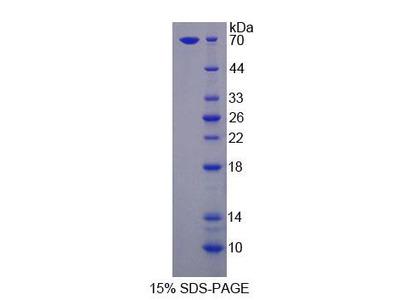 LSR / LISCH7 Protein