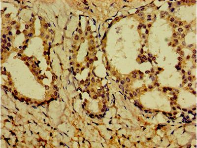 PVALB / Parvalbumin Antibody