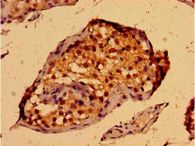 PORCN Antibody