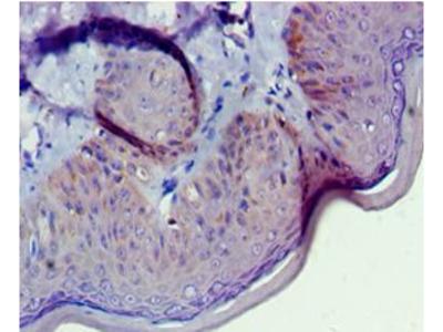 GNL3 / NS / Nucleostemin Antibody