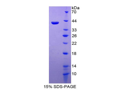 CCL26 / Eotaxin 3 Protein