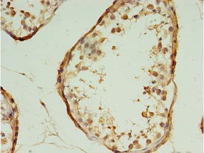 HSPC176 / TRAPPC2L Antibody