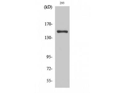 ANKRD30A / NY-BR-1 Polyclonal Antibody