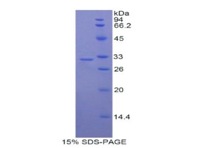 MYO1C Protein