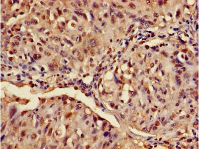 ATXN3 / JOS Antibody