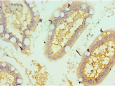 CSRP2BP Antibody
