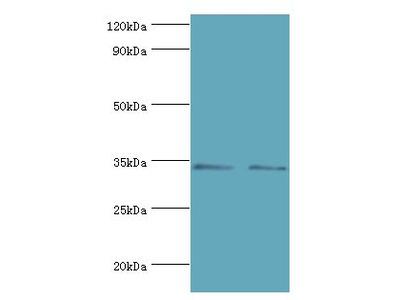 KIR2DS4 Antibody