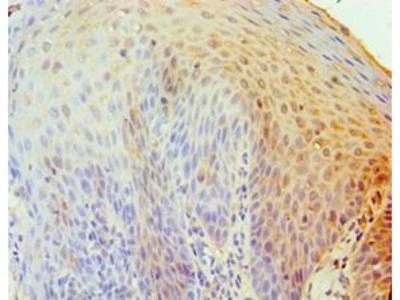 TRAIL-R4 / DCR2 Antibody