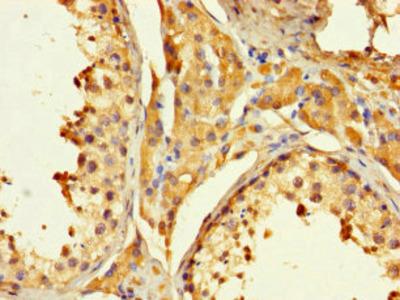 PAGE1 Antibody