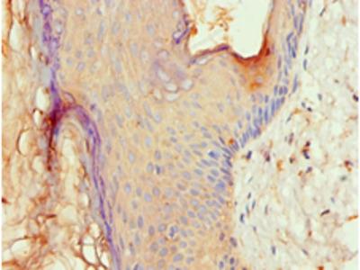 ALOX15B / 15-LOX-2 Antibody