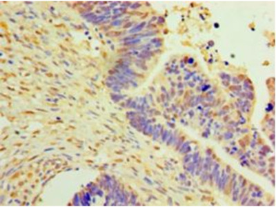 DNAJB2 Antibody