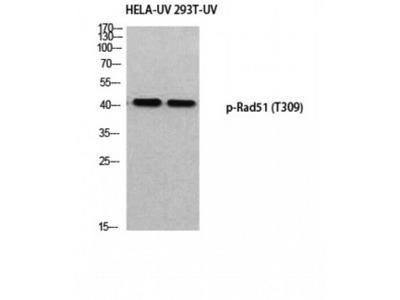RAD51 / RECA Antibody