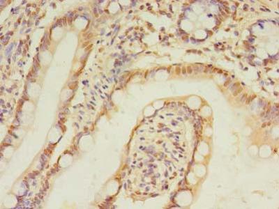 TRIM15 Antibody