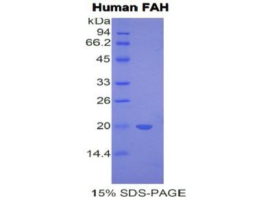 FAH Protein
