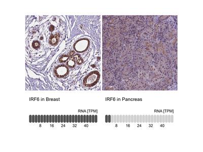 Anti-IRF6 Antibody