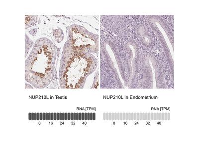 Anti-NUP210L Antibody