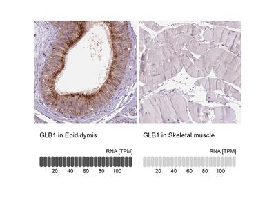 Anti-GLB1 Antibody