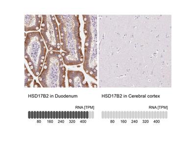 Anti-HSD17B2 Antibody