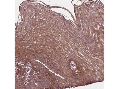 Anti-B3GALNT2 Antibody
