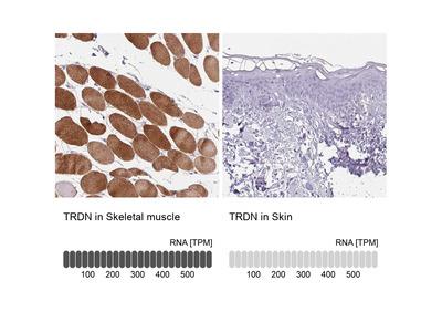 Anti-TRDN Antibody