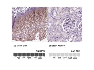 Anti-SBSN Antibody