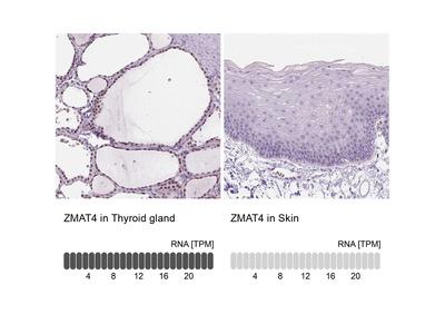Anti-ZMAT4 Antibody