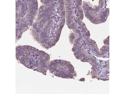 Anti-NIPA2 Antibody