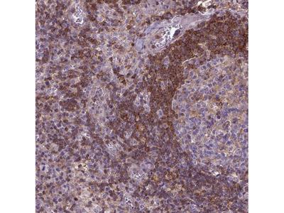 Anti-ACAD10 Antibody